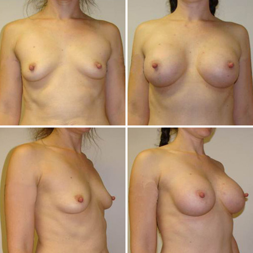 Breast implants cup size